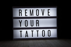 Body Tattoo Removal