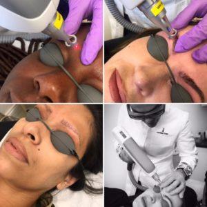 Specialist Semi-Permanent/Permanent Makeup Removal