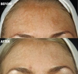 Pigmentation Treatments