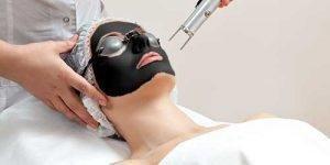 Laser Carbon Facials