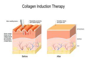 TKN Dermapen Microneedling Treatments