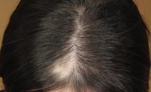 Hair Loss Scalp Needling Treatment